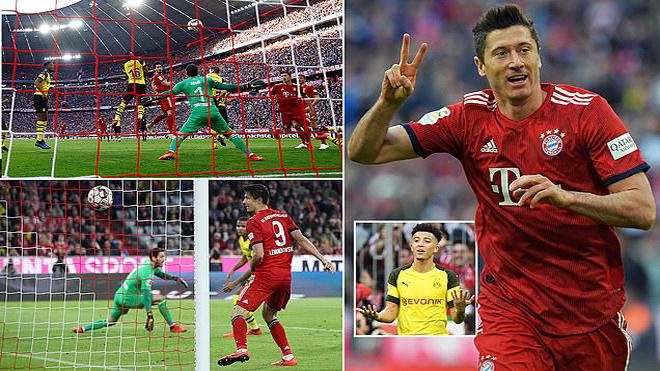 Bayern Munich – Dortmund: Đòn đau từ người cũ, tấn b.i k.ị.ch kinh hoàng